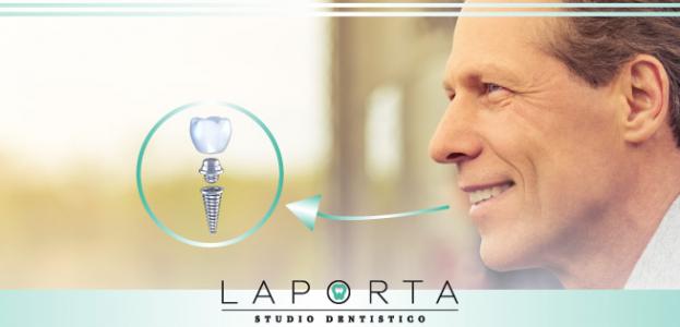 Impianti dentali: le tecniche per risolvere anche i casi più difficili